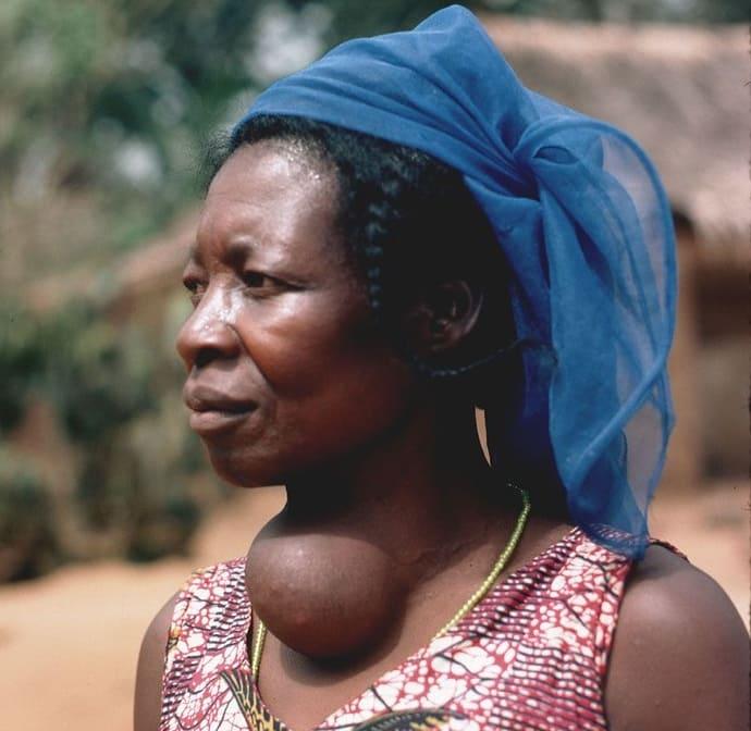 Femme présentant un goitre ; elle souffre de carence en iode.